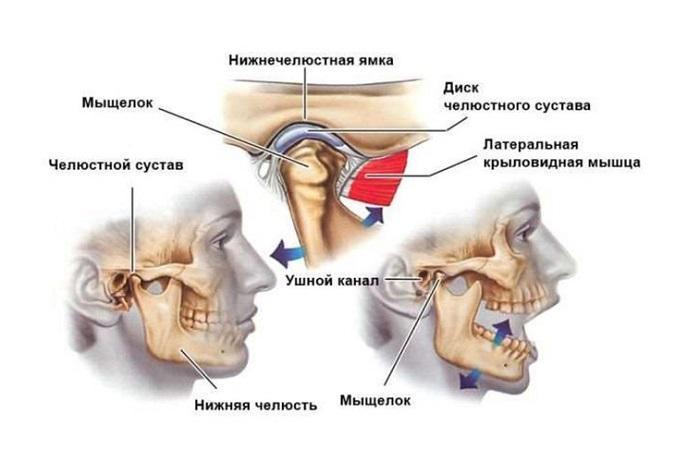 Замена височно челюстного сустава