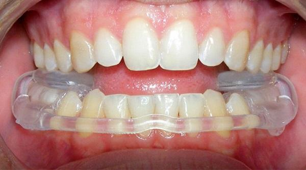 Растяжение связок височно-нижнечелюстного сустава Ретенция зуба
